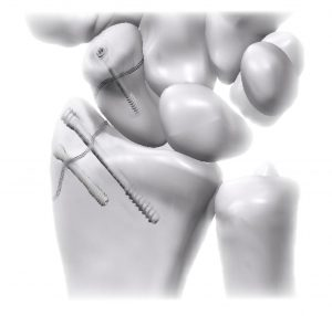 Scaphoideym and radius fracture fixed with bioabsorbable screws